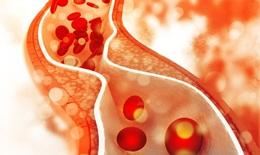 Suy tim biến chứng nguy hiểm từ bệnh động mạch vành