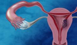 U nang buồng trứng – Tước đoạt khả năng làm mẹ của phụ nữ