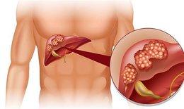 LEM - thành phần mà người ung thư gan, viêm gan mạn tính, xơ gan nên biết