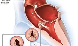 Hở van động mạch chủ, những thông tin quan trọng cần nắm rõ