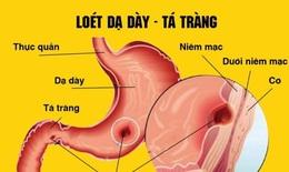 Những thói quen tốt dành cho người bị viêm loét dạ dày, tá tràng