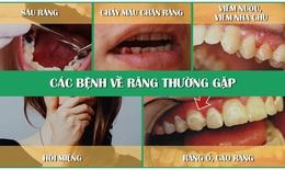 Người mắc bệnh răng miệng nên tái khám thời gian nào?