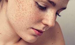 Sự thật về nám da không phải ai cũng biết