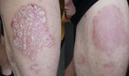 Giải pháp thảo dược hiệu quả cho bệnh vẩy nến