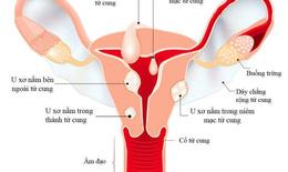 Cách hay giúp cải thiện u xơ tử cung mà không cần phẫu thuật