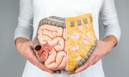 Công nghệ NBI mới giúp phát hiện sớm ung thư tiêu hóa