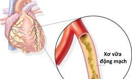 Những thông tin không thể bỏ qua cho người thiếu máu cơ tim
