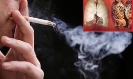 Biện pháp thảo dược hỗ trợ cho người bị ung thư phổi