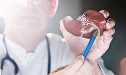 Những biểu hiện rõ rệt bệnh gan thường bị nhầm lẫn sang bệnh khác