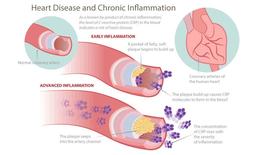 Mối liên hệ giữa bệnh viêm nha chu và các bệnh tim mạch