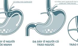 Vai trò của alginate và thuốc kháng axit trong điều trị trào ngược dạ dày