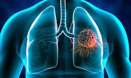 Phát hiện sớm và điều trị ung thư phổi như thế nào?