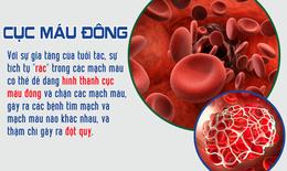 Mạch máu tắc - tuổi thọ ngắn: giải pháp hiệu quả để sống khỏe, sống thọ