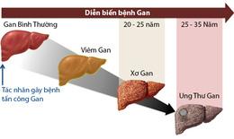 Những điều cần biết để có lá gan khỏe mạnh