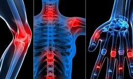 Học viện Quân y sản xuất thảo dược hỗ trợ khắc phục bệnh xương khớp lâu năm