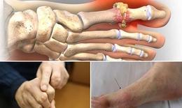 Bệnh gout trẻ hóa, hậu quả khôn lường nếu không xử lý kịp thời