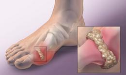 Hỗ trợ giảm triệu chứng gout hiệu quả từ dược liệu có trong vườn nhà