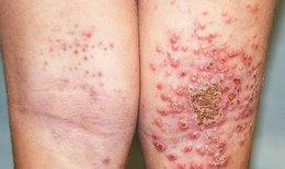 Những loại thực phẩm giúp phòng ngừa và ngăn bệnh chàm da tái phát