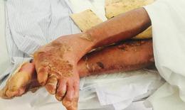Tin thuốc nam chữa bách bệnh: Nhiều người mất Tết vì dị ứng thuốc