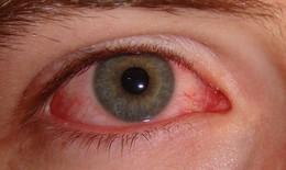 Bệnh đau mắt đỏ đang bùng phát mạnh tại Hà Nội
