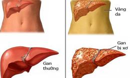 Bảo vệ, phục hồi tế bào gan sớm – Mấu chốt duy trì sức khỏe đường dài cho gan
