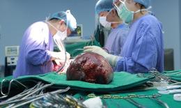 """5 giờ """"cân não"""" bóc khối u gan phải có kích thước khủng 30cm cho nam bệnh nhân"""