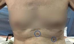 Mới: Bệnh nhân được phẫu thuật điều trị ung thư thực quản mà không cần mở bụng