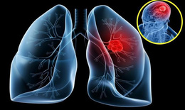 Báo động: Mỗi năm có khoảng hơn 20.000 người Việt  tử vong vì ung thư phổi
