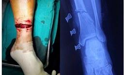 Người đàn ông ở Hoà Bình bị lưỡi cưa vỡ cắt gần như đứt chân