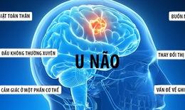 Cảnh báo: U não rất dễ nhầm lẫn với các bệnh lý khác
