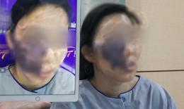 """""""Hoá giải"""" khối u máu khủng """"ăn"""" gần nửa khuôn mặt nữ công nhân nghèo"""