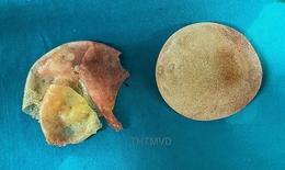 Nữ bệnh nhân vỡ túi silicone sau 5 năm nâng ngực nhưng không biết