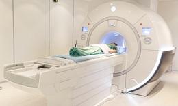 Đột quỵ não và vai trò của chụp cộng hưởng từ (MRI) trong tầm soát đột quỵ