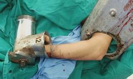 Do sơ sẩy người phụ nữ đến viện cấp cứu khi tay trong máy xay giò chả