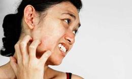 Bài thuốc tự nhiên trị các bệnh về da