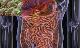 3 khám phá bất ngờ giữa vi khuẩn đường ruột và sức khỏe của bạn