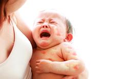 Mách mẹ cách chăm sóc trẻ bị dị ứng sữa bò