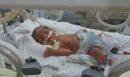 Ca mổ đặc biệt giành giật sự sống cho 2 mẹ con cô giáo mang thai 28 tuần bị tai nạn giao thông