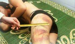 34% phụ nữ Việt Nam và hàng ngàn trẻ em gái đang chịu bạo lực gia đình, xâm hại tình dục