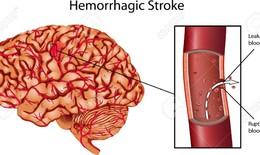 Đột quỵ chảy máu gây tổn thương nặng nề cho não bộ
