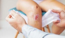 Khi bị nhiễm trùng, cần phải làm gì?