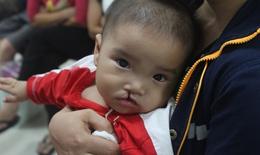 Phẫu thuật nhân đạo: Trả lại những nụ cười rạng rỡ cho trẻ