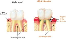 Bệnh nướu răng làm tăng nguy cơ sa sút trí tuệ