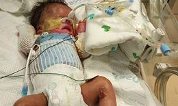 Em bé chào đời không có da do mắc bệnh di truyền hiếm gặp