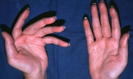 Bệnh đa xơ cứng làm tăng nguy cơ mắc bệnh tim, đột quỵ