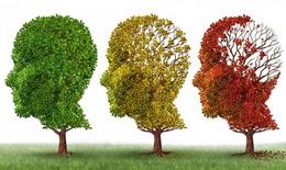 Thuốc phóng xạ mới giúp chẩn đoán bệnh Alzheimer