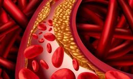 Tăng cholesterol cảnh báo mắc bệnh tuyến giáp