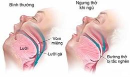 Điều trị ngưng thở khi ngủ ở người tiền tiểu đường, giảm nguy cơ mắc bệnh tim