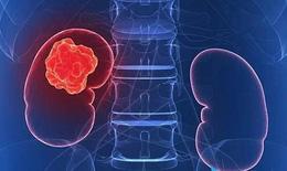Thuốc mới trị ung thư thận tái phát: Phòng ngừa bất lợi của thuốc