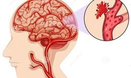 Bệnh nhân COVID -19 đối mặt với nguy cơ đột quỵ cao hơn